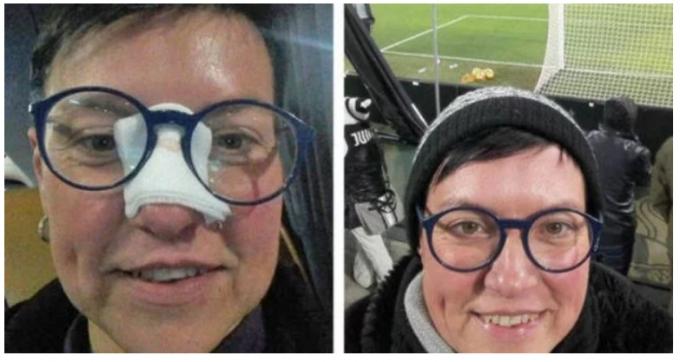 Криштиану Роналду разбил женщине нос - шокирующие фото (1)