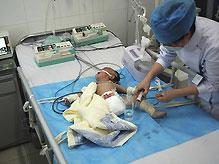 В Индонезии родилась девочка с восемью конечностями