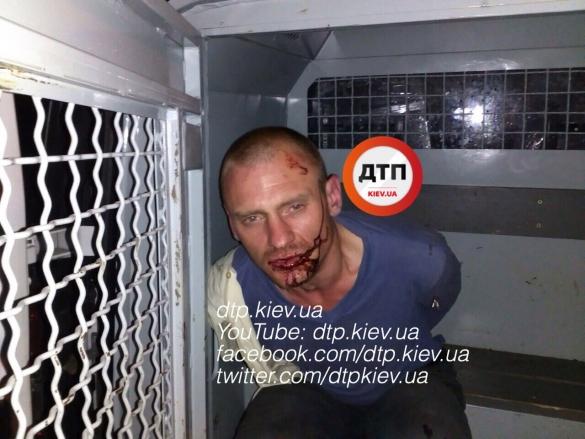 Під Києвом чоловік відбився від бандитів, які напали на його будинок: з'явилися фото (1)