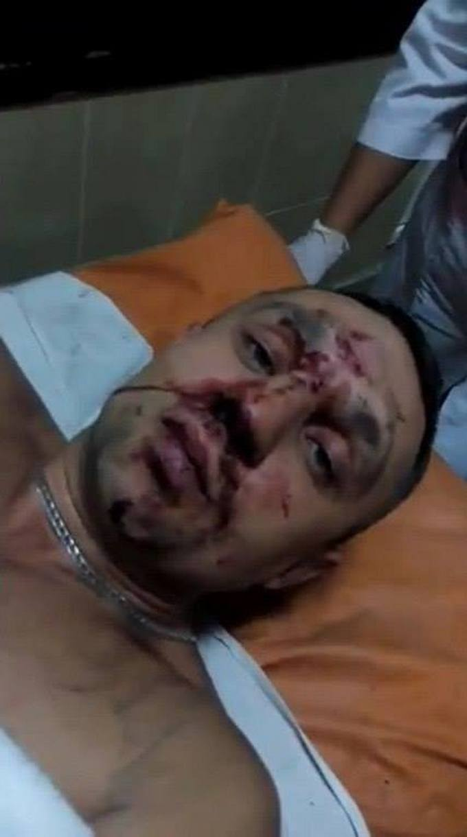 У Києві розстріляли бійця АТО: з'явилося фото (1)