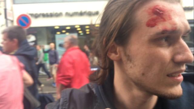 У Франції на Євро-2016 побили російських фанатів, двое опинились в лікарні: опубліковане фото (1)