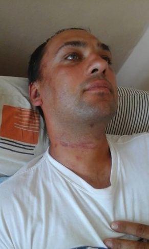 Побиття бійця АТО в Горішніх Плавнях: з'явилися нові шокуючі подробиці (1)
