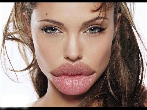 Девушки, перестаньте накачивать губы!